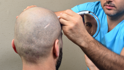 MyHairTR - Hair Transplant