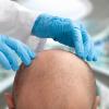 Pros_Cons- hairtransplant in turkey