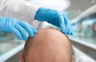 Pros_Cons- hairtransplant in turkey