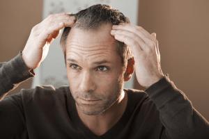 Was sind die Ursachen von Haarausfall?