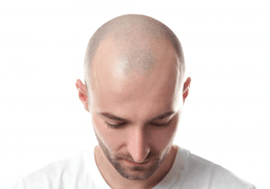 Hair Transplantation and Prices in Turkey
