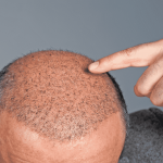 Hair Transplantation in Turkey / Istanbul