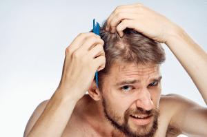 Vip Hair Transplant Service in Istanbul