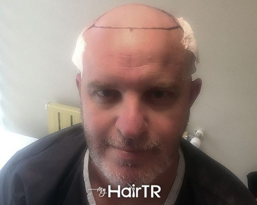 MyhairTR.com_Hair-transplant image 10
