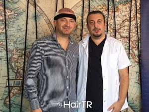 Faruk Yilmaz best doctor of hair transplantation in turkey