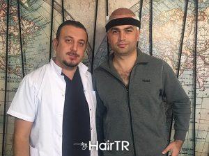 MyhairTR.com_Hair-transplant image 19