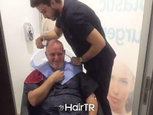 MyhairTR.com_Hair-transplant image 9