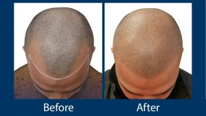 best hair transplantation clinics in turkey