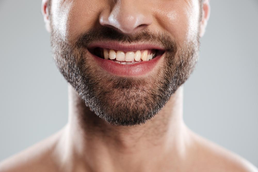 Beard Transplation in Turkey