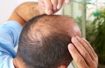 3 Main Reasons of An Unsuccessful Hair Transplant