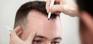 Opening Canals in Hair Transplant Procedure
