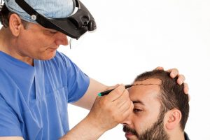 Hair transplantation questions