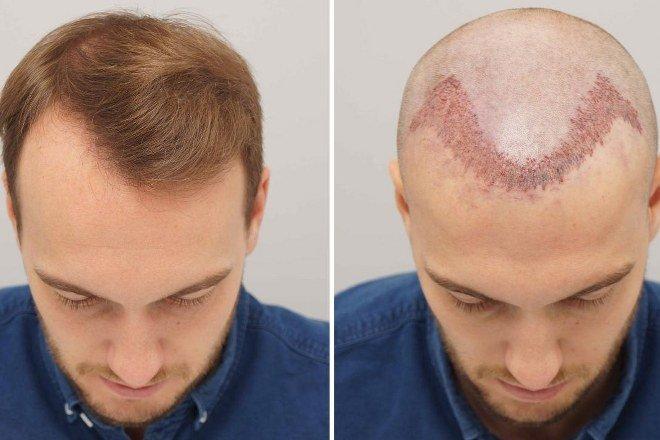 Methods in hair transplantation