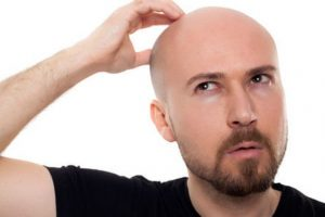 Methods in Hair transplantation