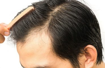 Hair transplantation questions