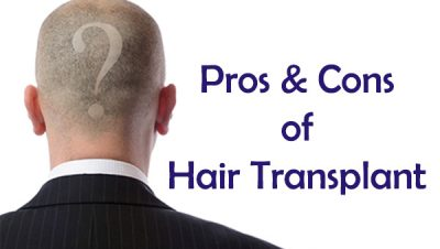 Hair Transplant Pros and Cons