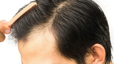 The Recovering Process After A Hair Transplantation