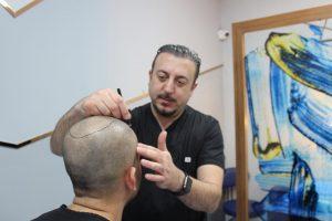 Faruk Yilmaz best doctor of hair transplantation in turkey