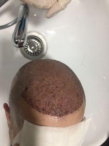 hair transplantation washing
