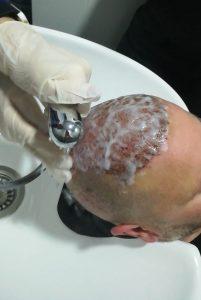 washing after hair transplantation1