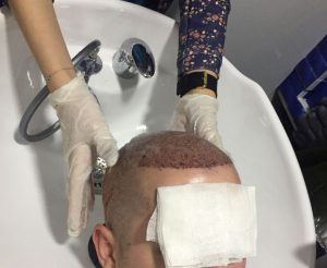 washing after hair transplantation