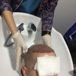washing after hair transplantation