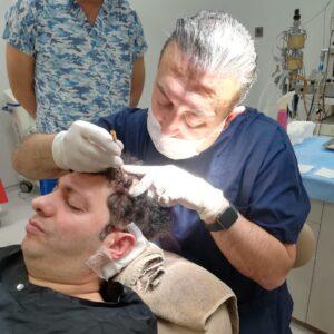 Hair Transplantation Faruk Yilmaz